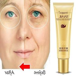 20g Eye Cream Moisturizing Dark Circles Puffiness Treatment